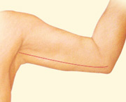 Arm Lift, Incision